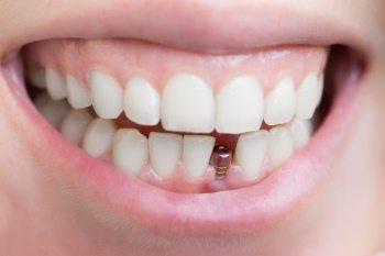 maintenance of dental implants