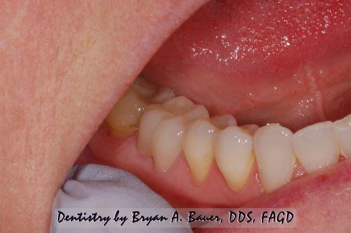 Image of a new Translucent Zirconia Crowns