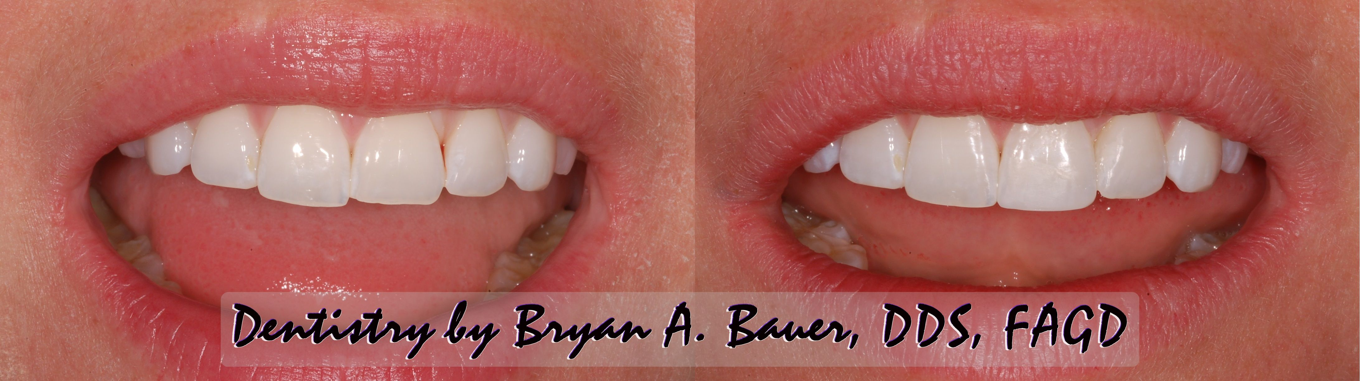 Chipped front tooth filling - Easy Solution! - Bauer Smiles