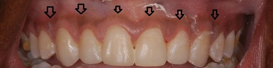black gums treatment cost