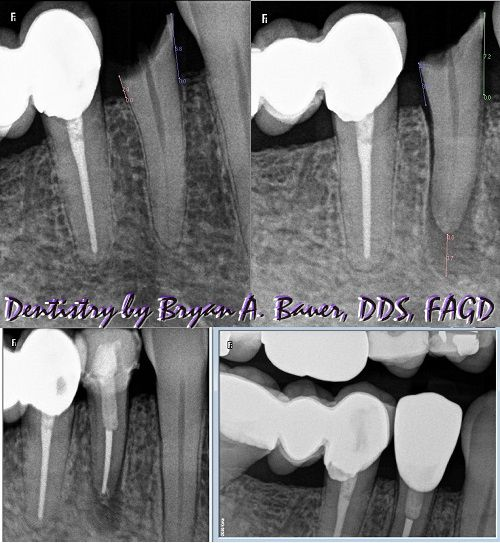 surgical extrusion technique root canal