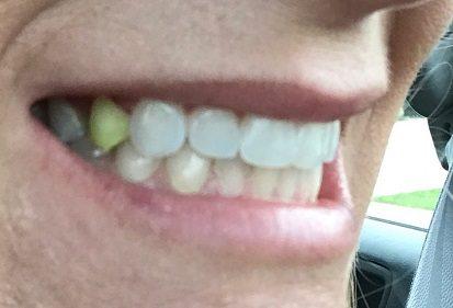 turmeric stain teeth