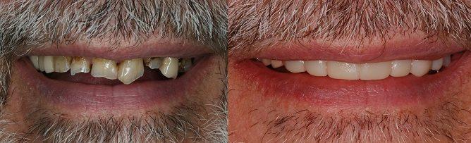 trial smile dental crowns
