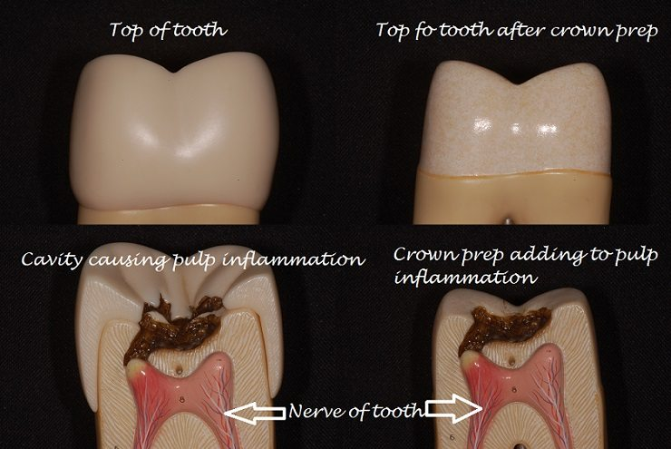tooth hurts after crown