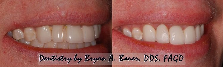 Dental veneer cracked naturally and then repaired.