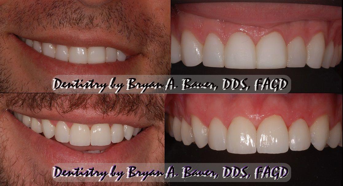 Can you replace dental veneers?