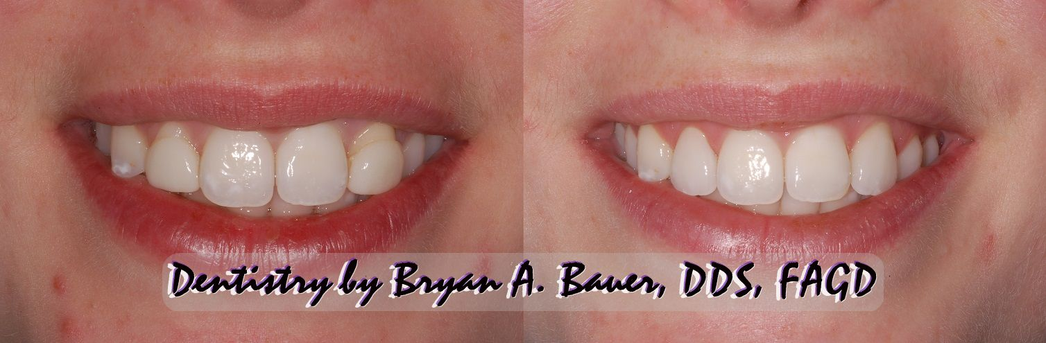 Before and after photo of replacement dental veneers