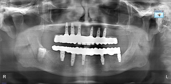 Xray of zirconia all on 4 framework