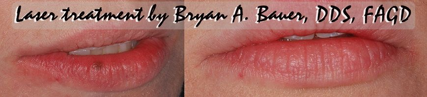 Image of freckle on lip removal