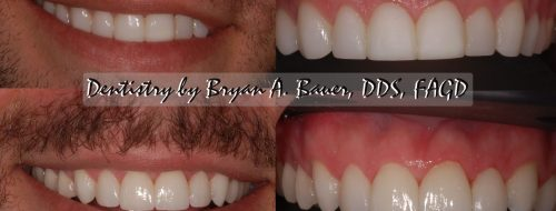 High resolution dental veneers before and after
