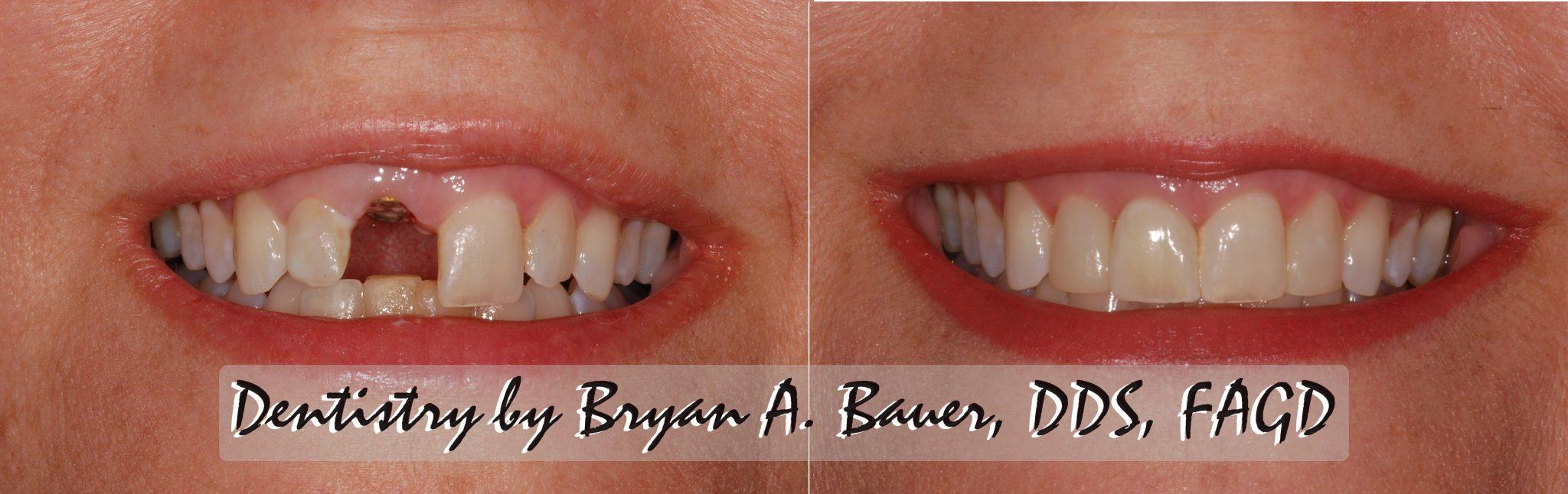 Image of a single immediate dental implant crown