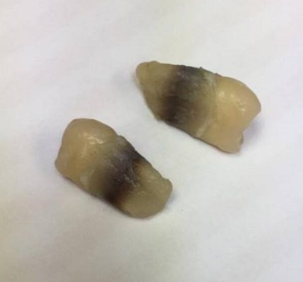Image of black staining on extracted tooth