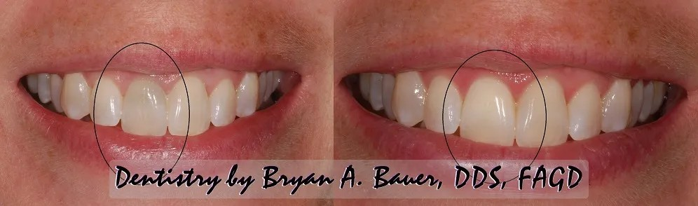 Internal bleaching or internal whitening results seen here.