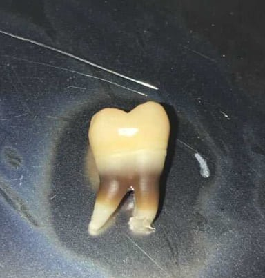 Image of a black band on an extracted tooth