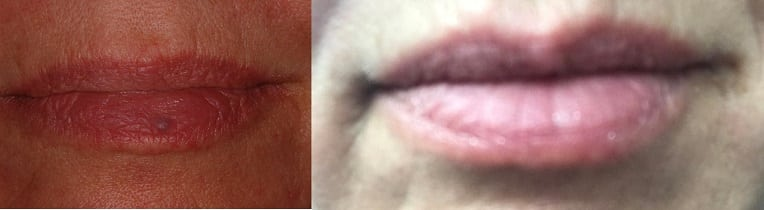 Image of blue spot on lower lip