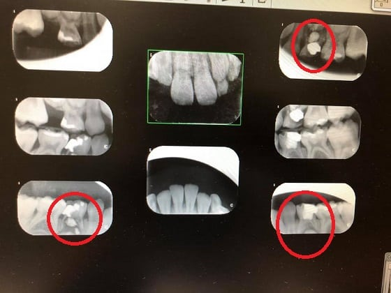Xray of dental toursim work