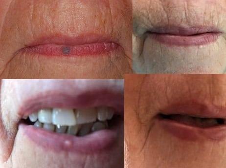 Venous lake treatment - Venous lake lip laser treatment