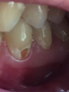 Image of brown spots on my teeth near gums