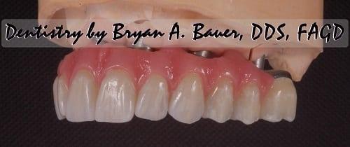 All on 6 zirconia teeth photo