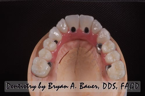 All on 6 upper jaw with zirconia and nanohybrid teeth