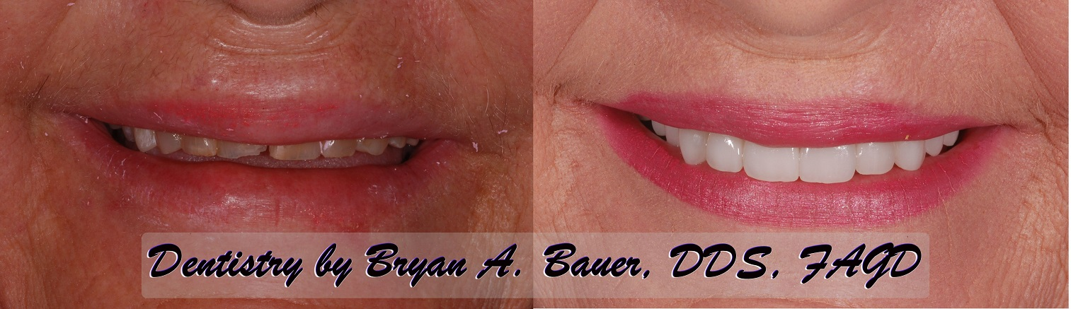 Before and after of worn down teeth