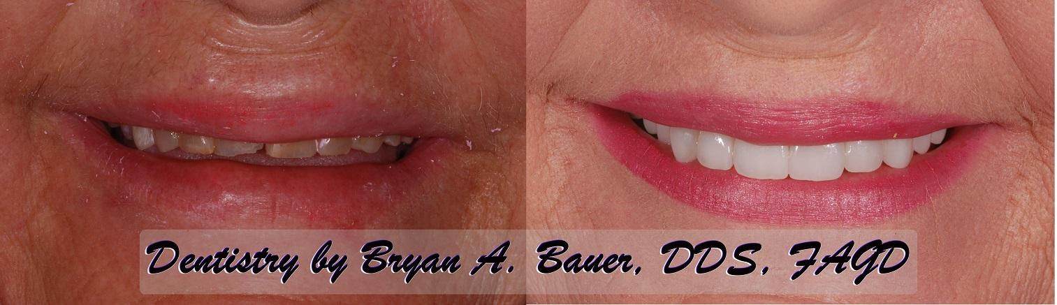 Worn down teeth fixed with dental veneers