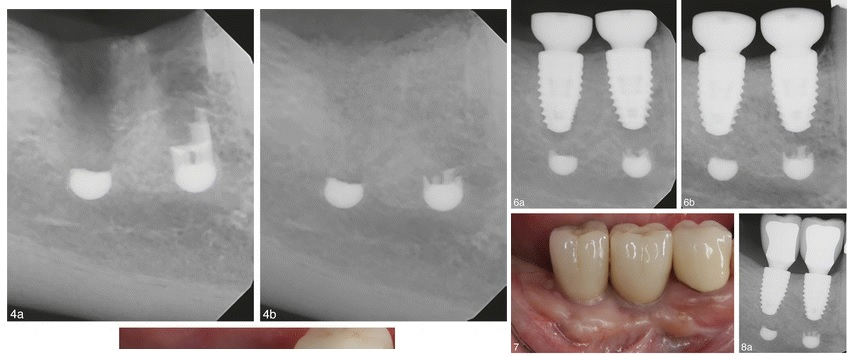 Partial removal of a flowered dental implant.
