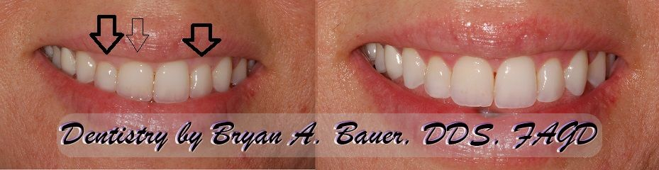 Minor case of before and after laser gingivectomy treatment.