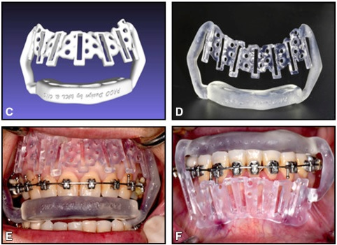 Accelerated orthodontics with a surgical guide is very helpful.