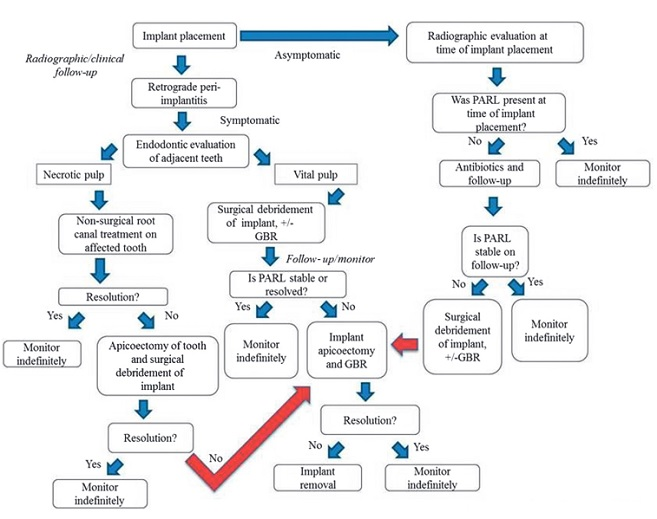 Retrograde peri-implantitis decision tree