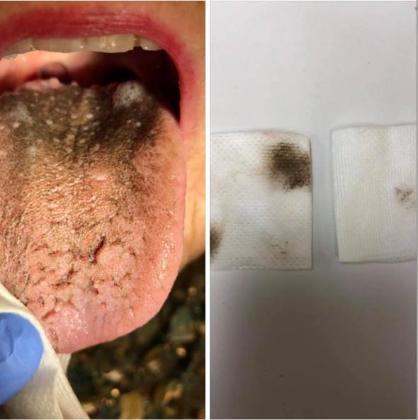 Image of a black tongue.