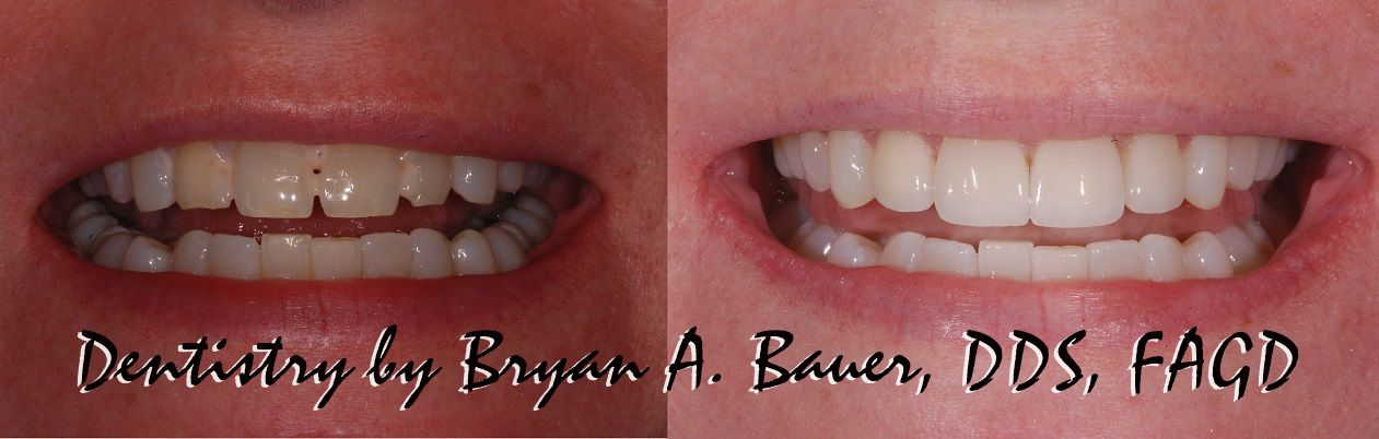 Before and after dental veneers with some bonding.