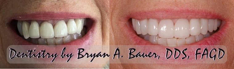 Before and after photo of tetracycline teeth staining treatment with dental veneers.