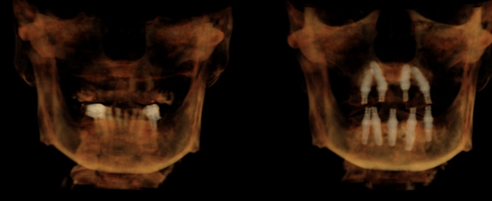 All on 4 and all on 5 CBCT before and after of same day treatment.