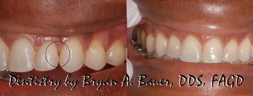 Closing black triangles teeth after braces