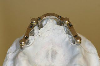 Implant Supported Overdenture bar