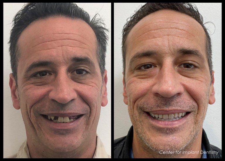 full-face-before-and-after10