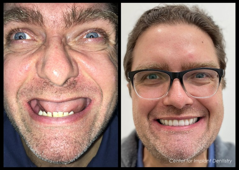 full-face-before-and-after17