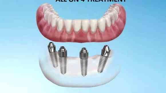All on 4 Treatment - CID