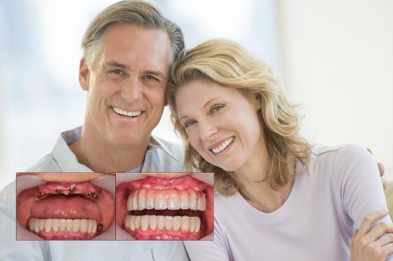 Full Mouth Dental implants - CID