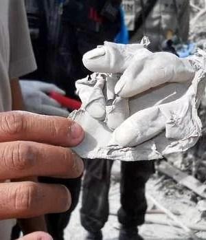 Ein Bild wie aus einem Horror-Film: Ein Helfer hält ein Stück Haut, das sich von der Hand eines Asche-Opfers abgelöst hat  Fotoquelle: Bild.de