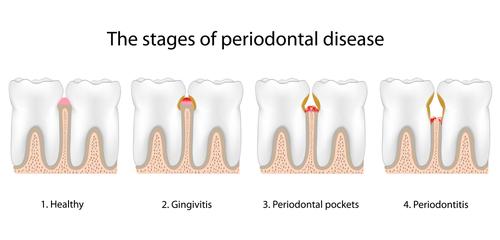 deep cleaning gum disease