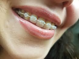 ضع سويا رفض يدمر السلك الخلفي للأسنان بعد التقويم Centhini Resort Com
