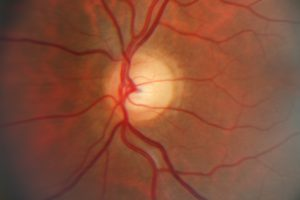 Can diabetes cause blindness?