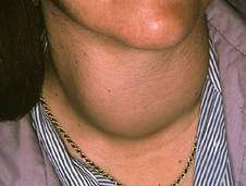 woman's neck swelling due to thyrotoxic goitre