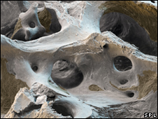 Hueso afectado por la osteoporosis