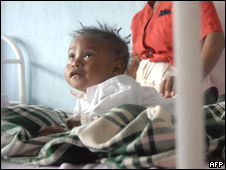 Niño desnutrido en un hospital de Jalapa, Guatemala