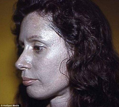 Ms Jacobs (pictured at the age of 36) said: 'People point and stare, calling me names and telling me to take my Halloween makeup off'