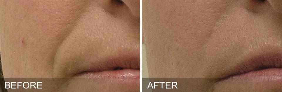 HydraFacial nasolabial folds - mouth smile lines - before and after reduction