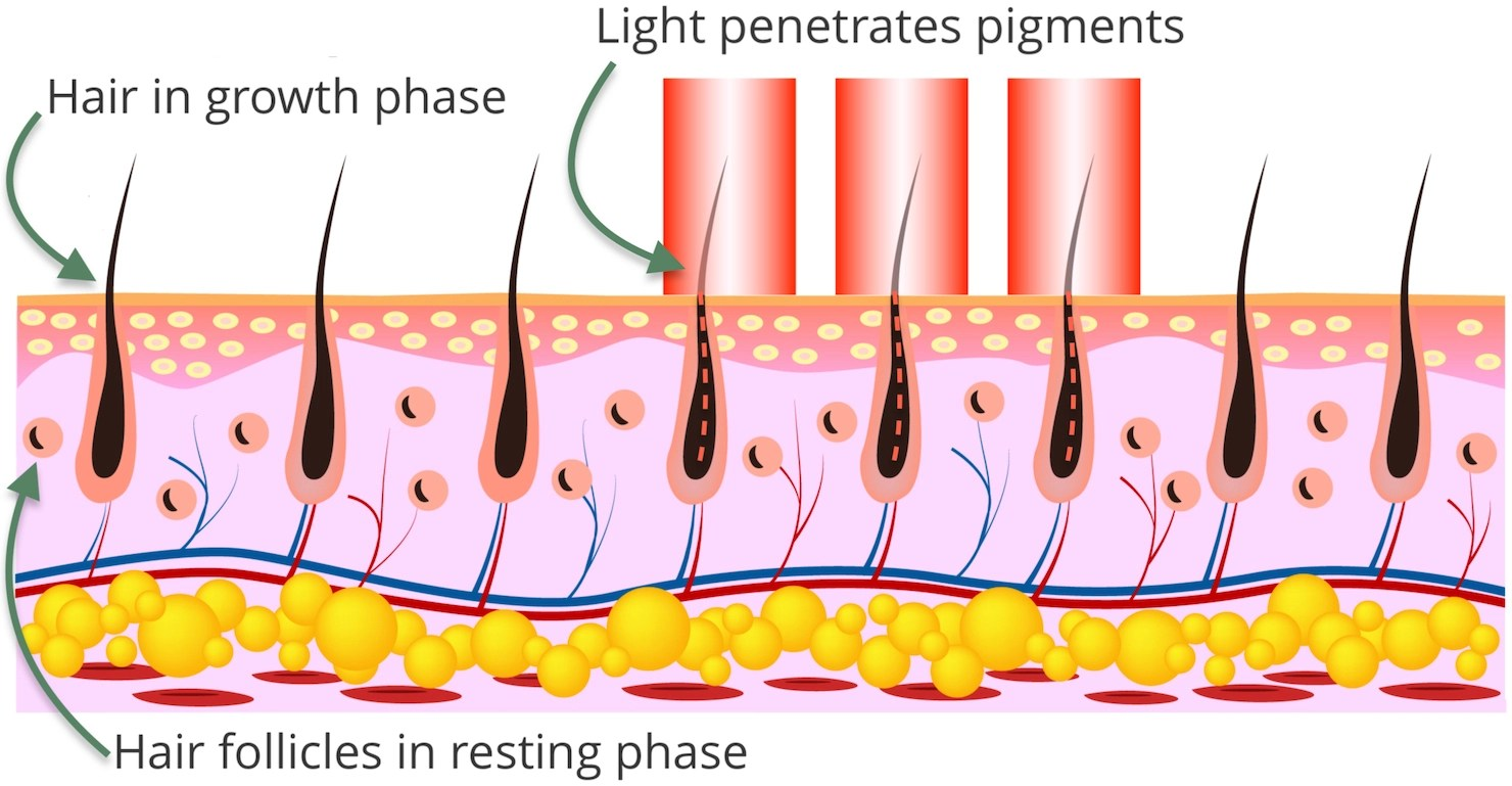 Laser hair removal diagram to show hair targeted through light pigments using our Surrey laser hair removal techniques